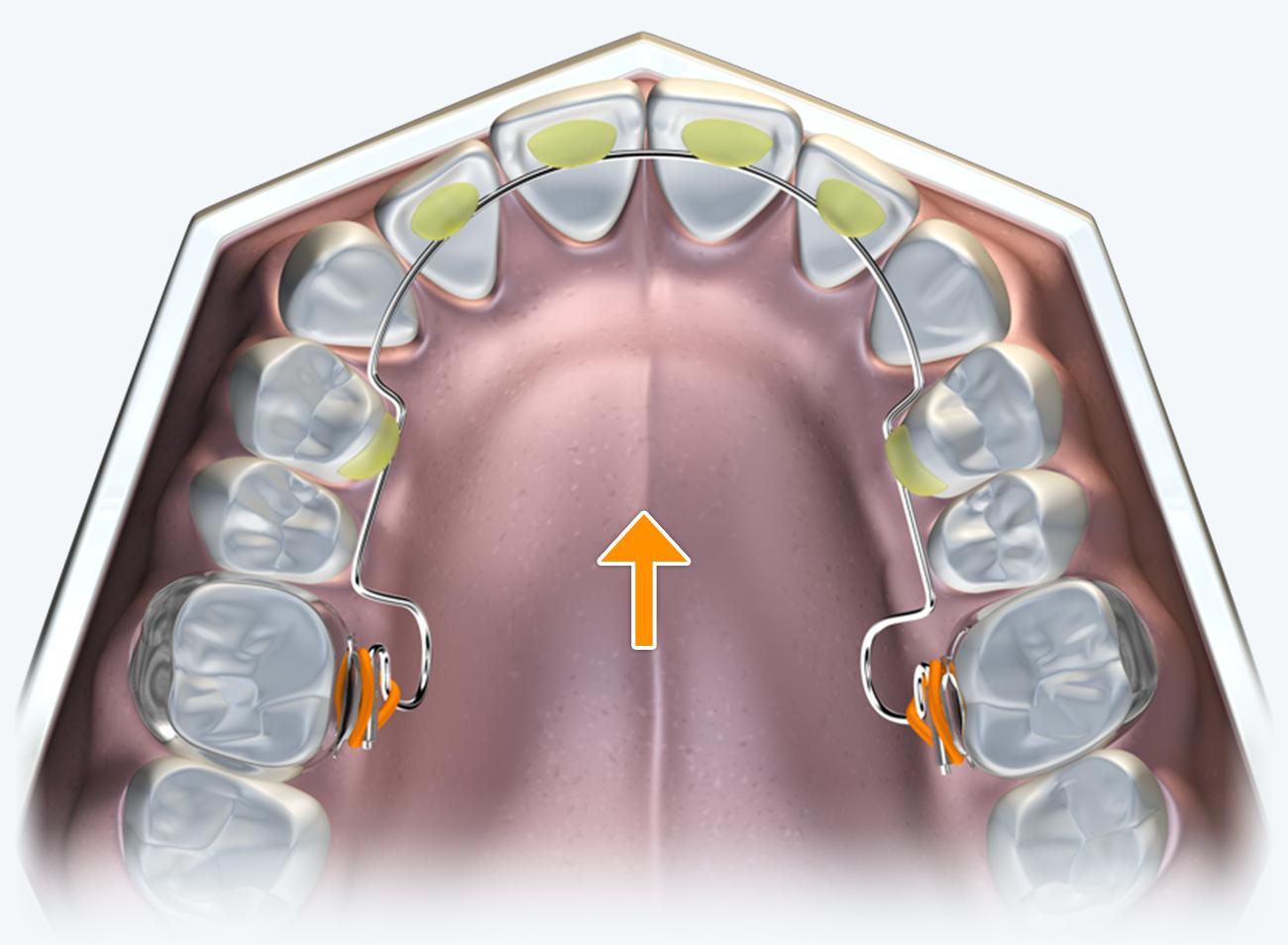 No palatal component