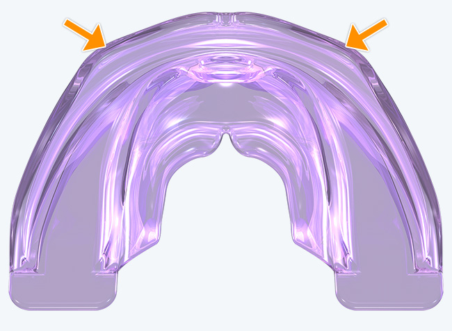 Robust anterior arch form