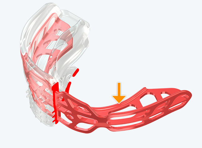 Modified Dynamicore™ (Frankel Cage)