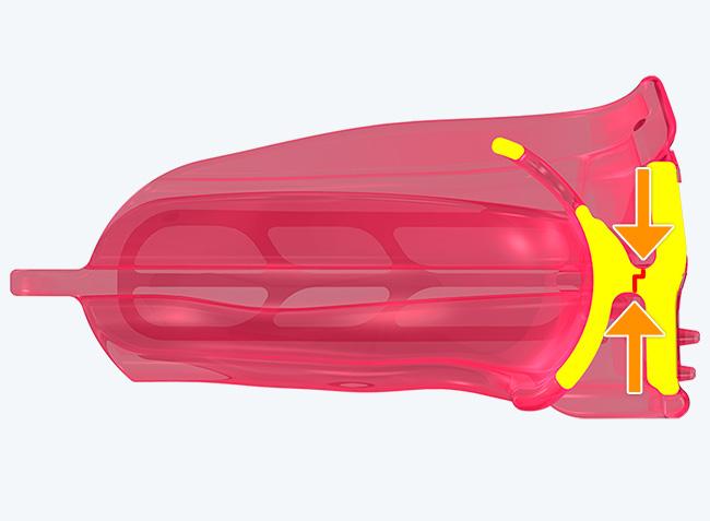 1mm anterior offset