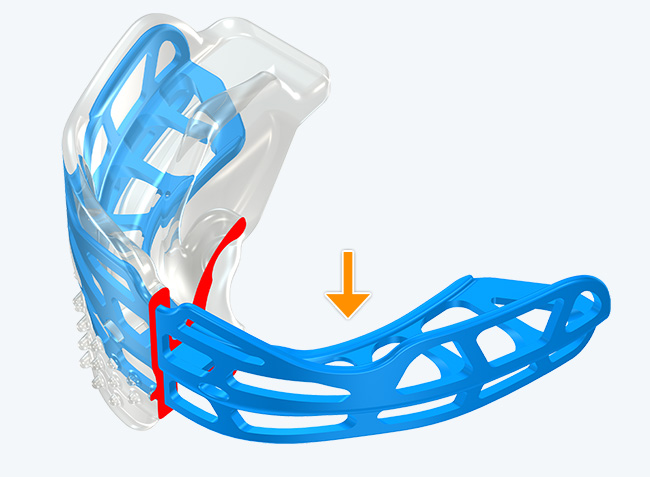 Modified Dynamicore™ with (Frankel Cage)