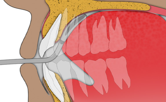 Tongue Exercise: Step 2