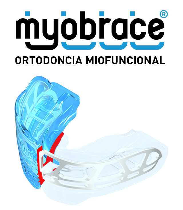 The Myobrace® System